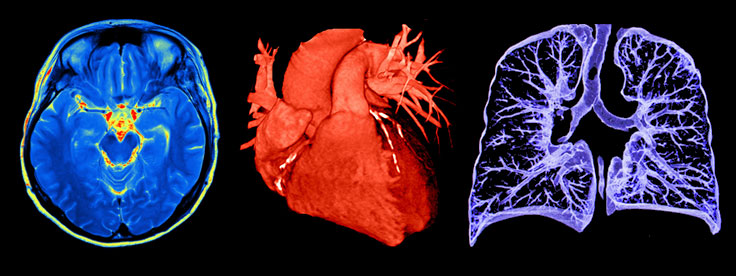 Imaging: brain, heart, and lung